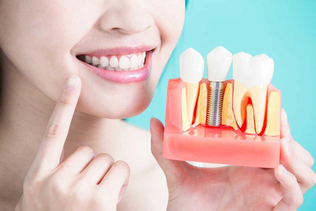 Cómo se cuidan los implantes dentales