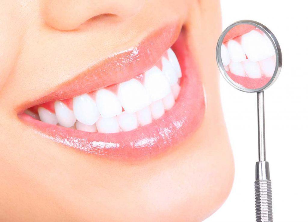 Precios de los implantes dentales