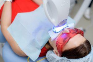¿Por qué debería blanquearme los dientes un dentista profesional?