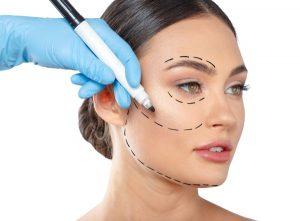 ¿Cuáles son las principales ventajas de un lifting facial?
