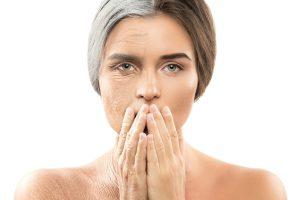 5 razones para realizarse un lifting facial