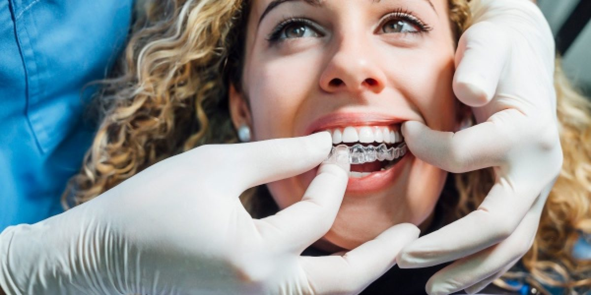 5 ventajas de la ortodoncia invisible frente a la ortodoncia tradicional