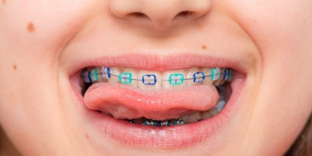 ¿Cuánto tiempo llevará mi hijo la ortodoncia?