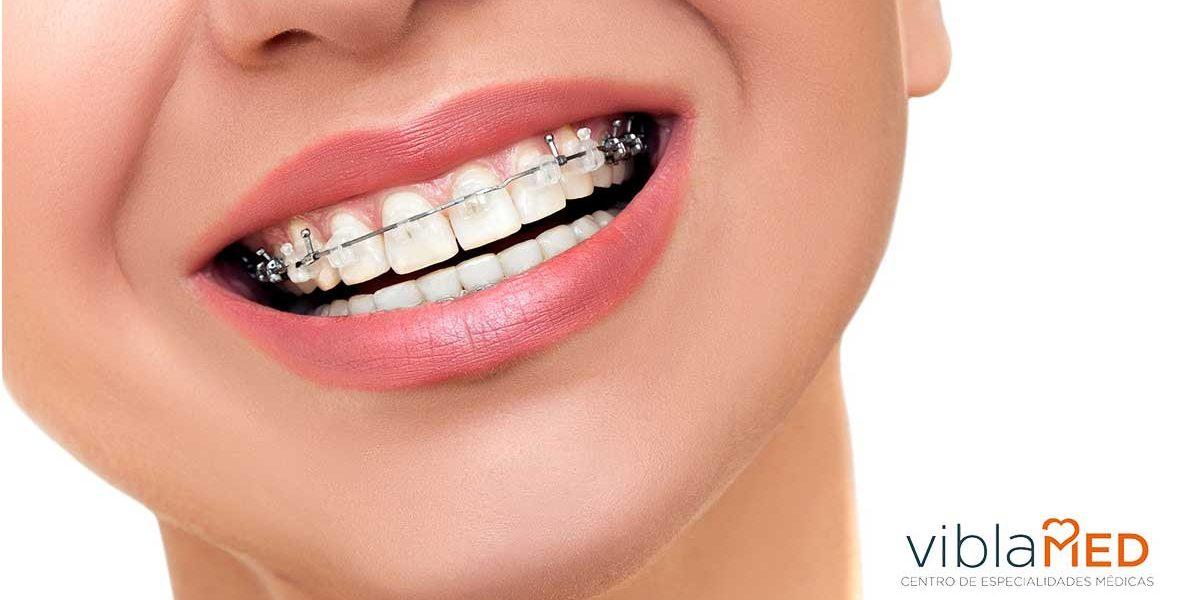 ortodoncia-mover-diente