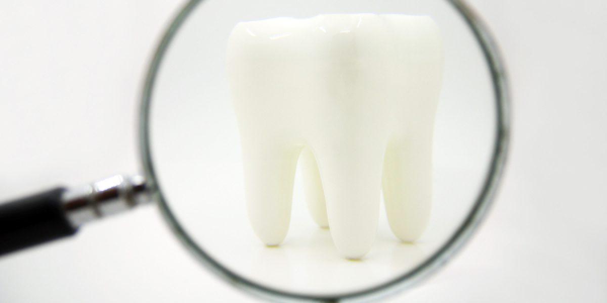 ¿Por qué se rompen los dientes?