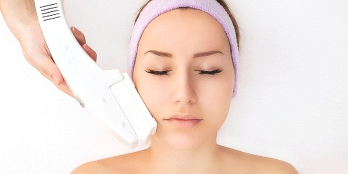 tratamiento-laser-acne-x2